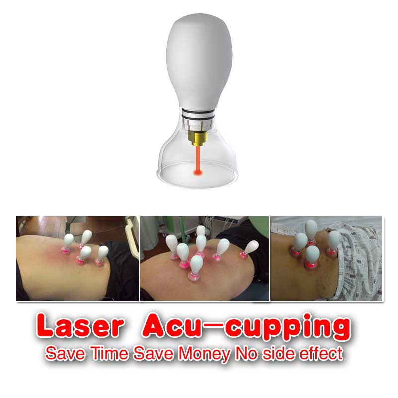 Laser Acu-Cupping